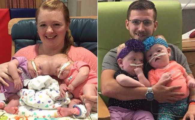 Conjoined Twins Who Survived A Rare Surgery Preparing To Go Home